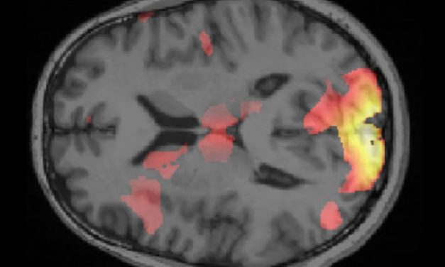 Removing Specific Fears From the Brain